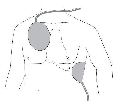 Platzierung der FRED easy Elektroden
